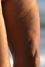 how to get rid of cellulite on inner arms